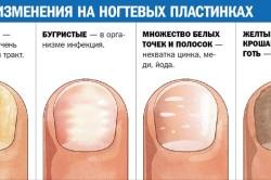 Определение заболевания по состоянию ногтей
