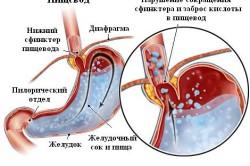 Схема эзофагита у детей