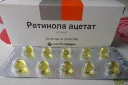 Ретинола ацетат - препарат от каплевидного псориаза