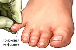 Схема грибка ног