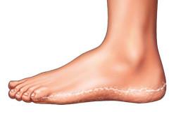 Сухость кожи на пятках при грибке
