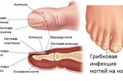 Схема грибка ногтей