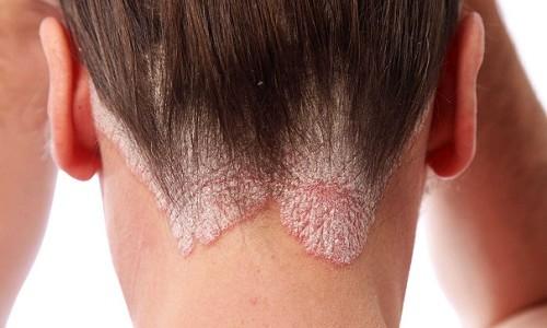 Проблема грибка волосистой части головы