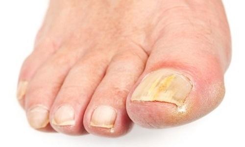 Проявление грибка на ногтях