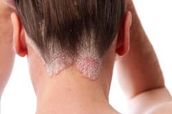 Шелушение кожи головы при грибке