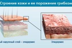 Строение кожи и ее поражение грибком