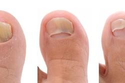 Проявление грибка на ногтях ног