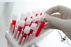 Анализ крови при кандидозе горла