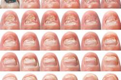 Изменения при грибке ногтя