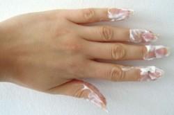 Лечение ногтей кремом