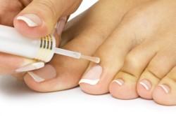 Применение лечебного лака для ногтей при грибке