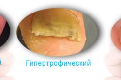 Европейская классификация онихомикозов