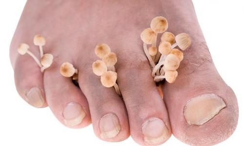 Проблема грибка между пальцами ног