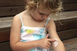 Польза мазей для лечения грибка у детей