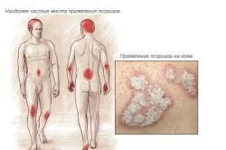 Места проявления псориаза