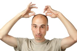Облысение при грибке волосистой части головы