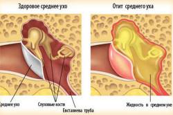 Отит - причина грибка в ушах