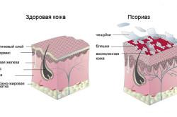 Сравнение здоровой и пораженной псориазом кожи