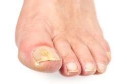 Помутнение ногтевой пластины - признак грибка