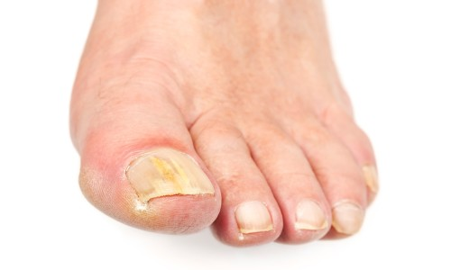 Проблема грибка на пальцах ног