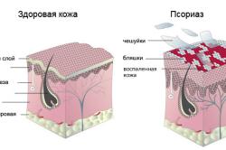 Схема псориаза
