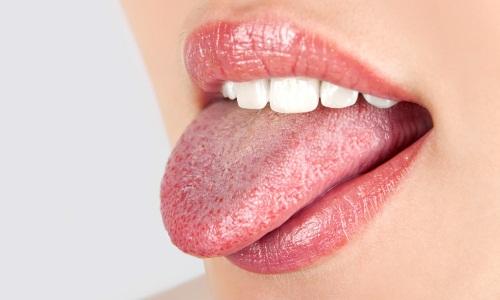 Проблема грибка во рту