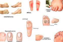 Виды заболеваний стоп и ногтей