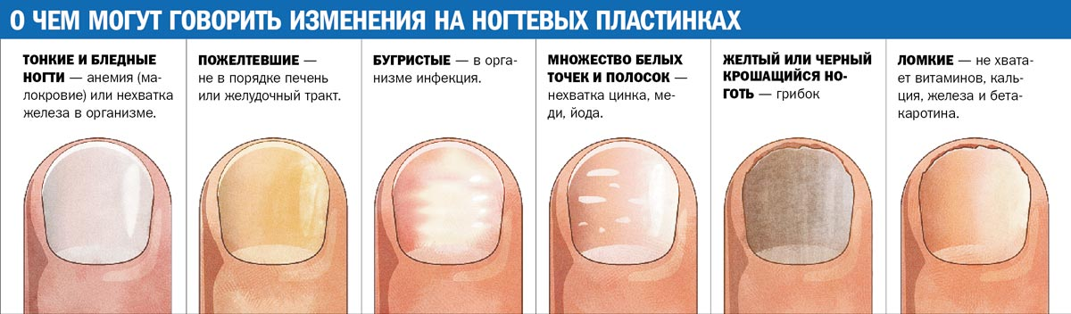 Грибок на ногтях рук и лечение фото