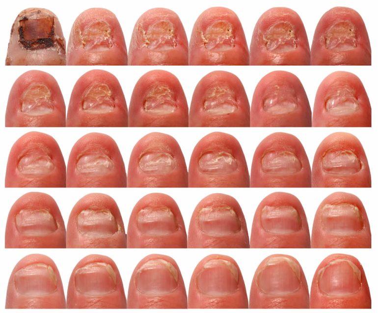 Як вилікувати грибок на ногтях