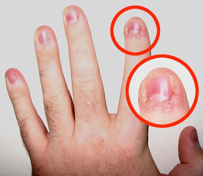 Как проявляется грибок ногтей на ногах фото