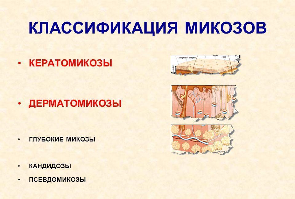 Стол для язвенной болезни 12 перстной кишки