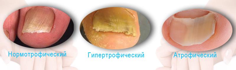 Грибок на ногах между пальцами болит