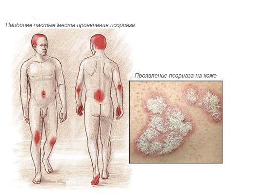 kak-lechit-psoriaz-meditsina