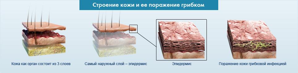 mikoz-pishevoda-lechenie