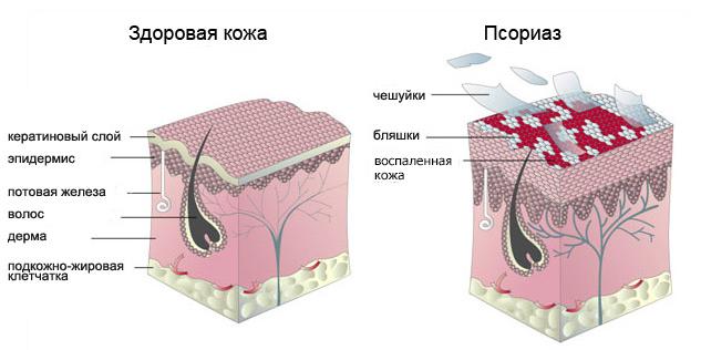 псориаз схема лечения: