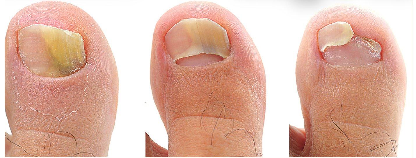 Фото и лечение грибок ногтей