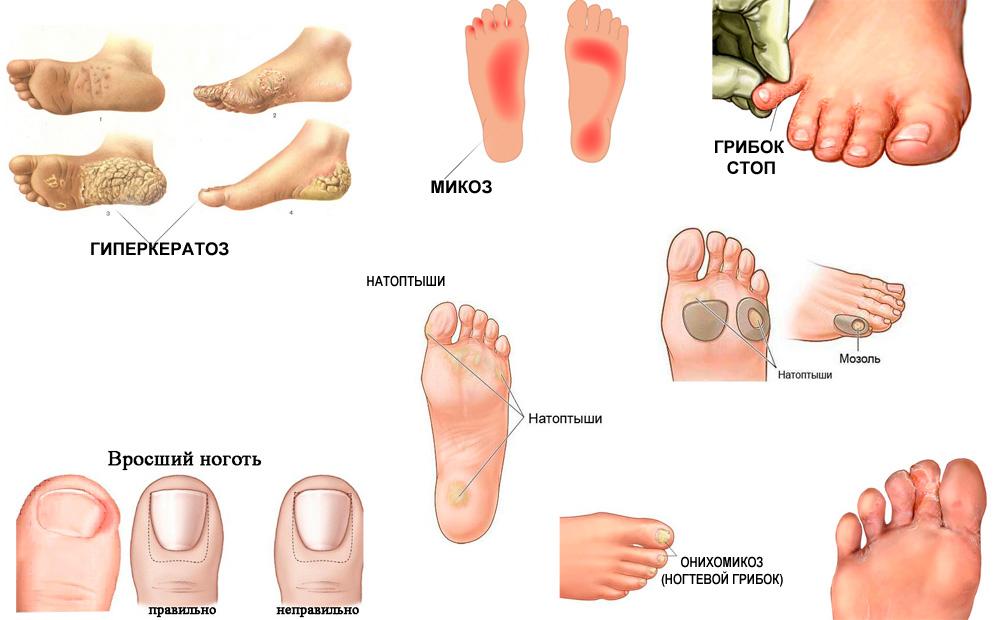 Самое эффективное средство от грибка ногтей на ногах
