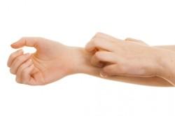 Зуд на руках при грибке